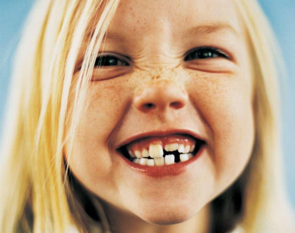 denti-da-latte-sorriso